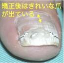 巻き爪矯正VHO治療中のきれいな爪