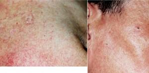 ステロイド外用薬による毛細血管拡張症